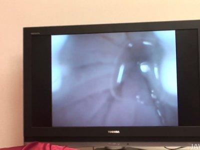 微型相机在里卡你湿的阴部里面